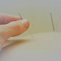 medisinsk akupunktur